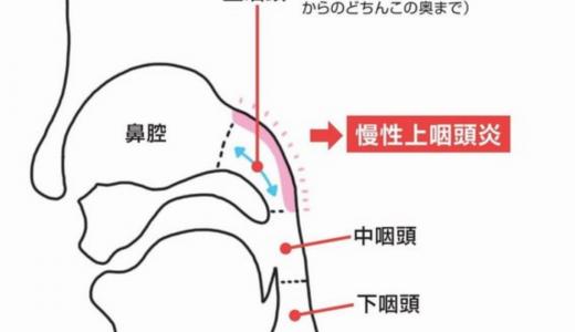 風邪の予防と免疫力アップ 上咽頭の洗浄